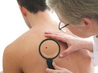 Hautärztin untersucht den Rücken eines jungen Mannes