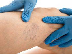 Medizinische Untersuchung von Besenreisern am Bein