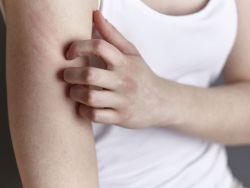 Mädchen kratzt sich den juckenden Arm