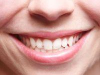 7 Tipps für ein strahlend weißes Lächeln