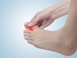 Fuß mit gechwollenem großen Zehgelenk