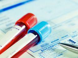 Organspende-Fakten: Die wichtigsten Infos