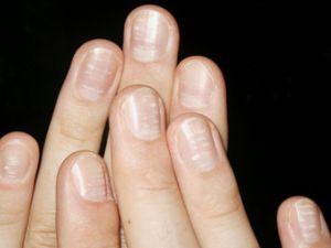 Bedeuten weiße Flecken auf den Fingernägeln einen Kalziummangel?