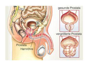 Prostata-Krebs: Mann, pass auf Dich auf!
