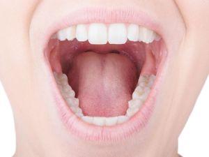 Zungenbelag: Wann ist er ein Krankheitszeichen?
