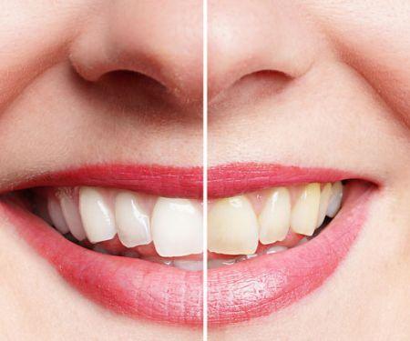 Frau mit gebleachten Zähnen