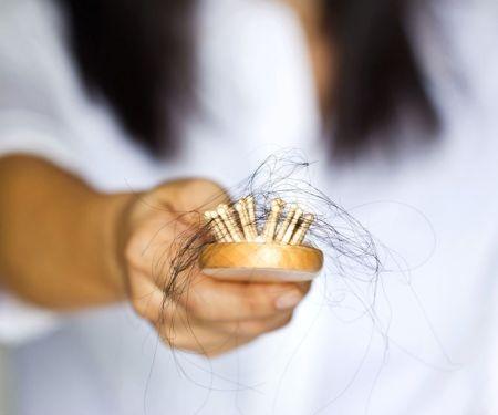 Frau hält eine Bürste voller ausgefallener Haare