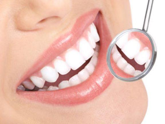 Weiße Zähne wirken vor allem gepflegt